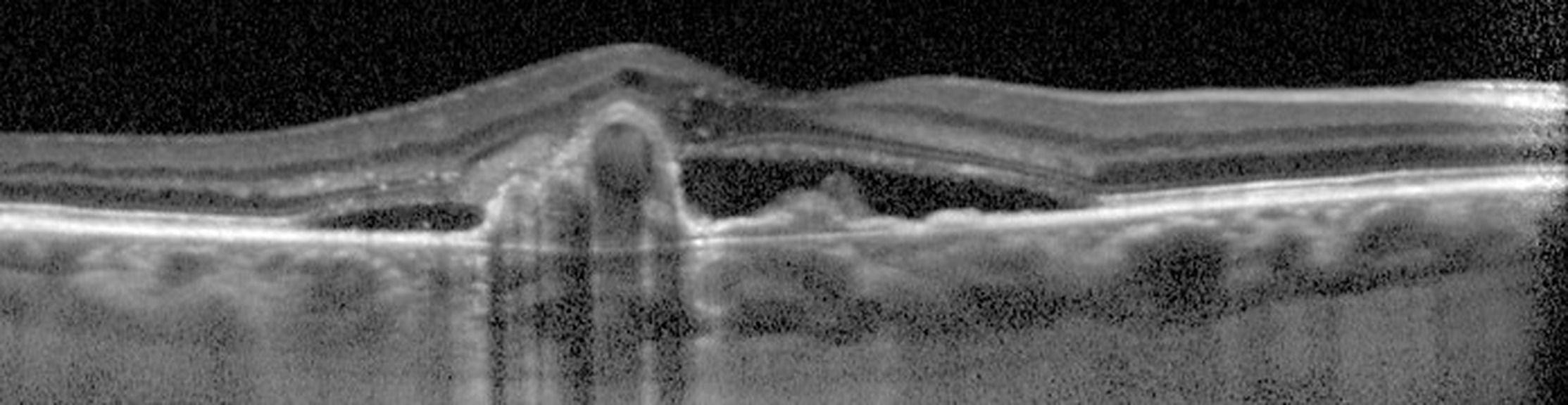 Diagnostic différentiel de la DMLA : la vasculopathie polypoïdale choroïdienne VPC