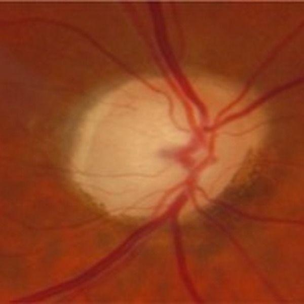 Évaluation de la progression du glaucome en OCT