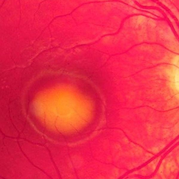 Les dystrophies maculaires héréditaires, quels examens pour orienter le diagnostic ?