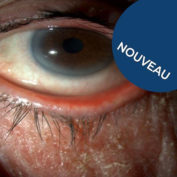 Les bonnes pratiques cliniques dans le glaucome : stratégie thérapeutique adaptée