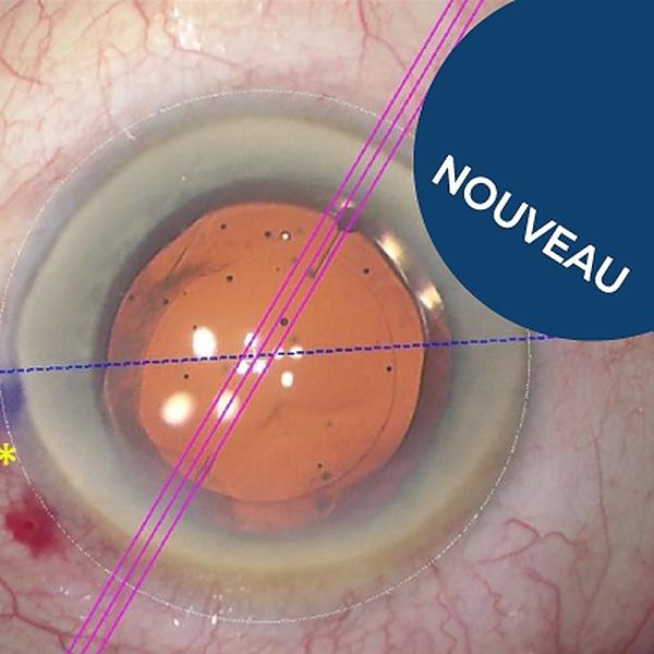 Bon usage des implants toriques dans la chirurgie de la cataracte